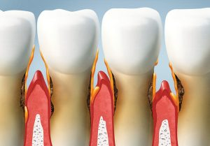 Exploring the stages of gum disease with Dr. Huff